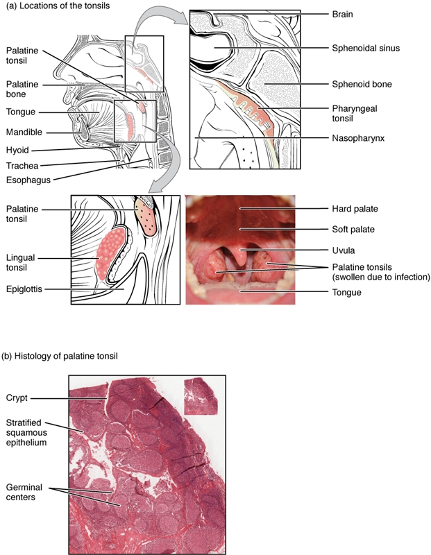 Locations and Histology of the Tonsils
