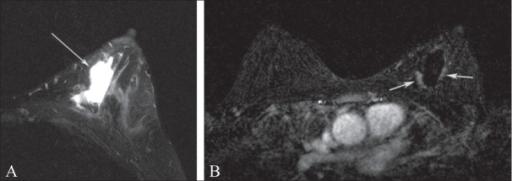 MRI breast cancer