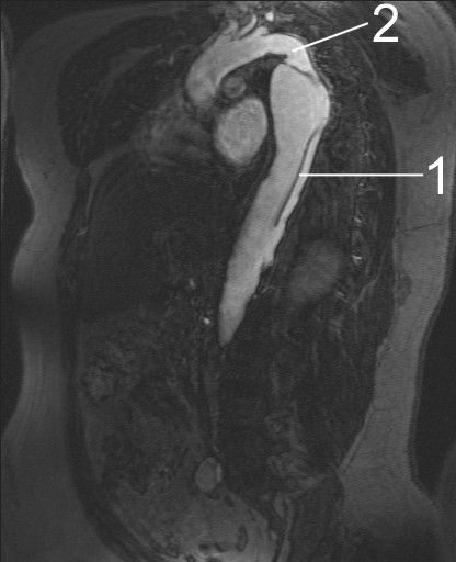 MRI image showing aortic dissection