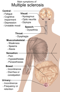 Main symptoms of multiple sclerosis
