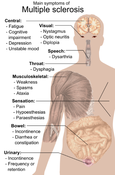 Main symptoms of multiple sclerosis