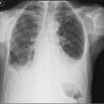 Medical_X-Ray