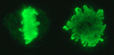 Metaphase_chromosomes