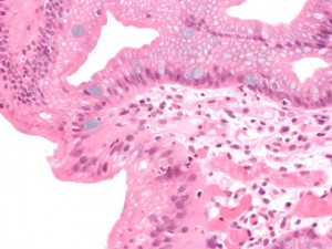 Micrograph of Barrett's esophagus