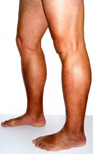 Mild chronic venous insufficiency