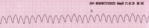 Monomorphic ventricular tachycardia