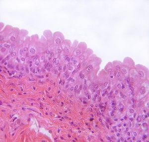 Mucous membrane of urinary bladder with urothelium
