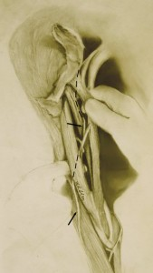Musculocutaneous nerve