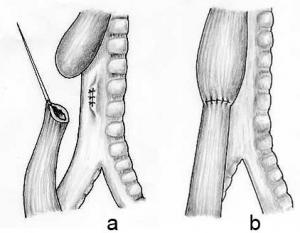 Oesophageal atresia