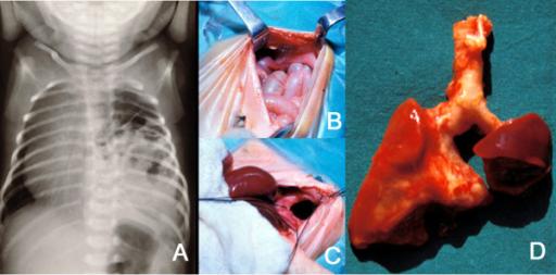 Pediatric Pulmonology: CF, BPD, Diaphragmatic Hernia and more