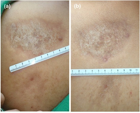 Morphea (Localized Scleroderma) — Symptoms and Prognosis