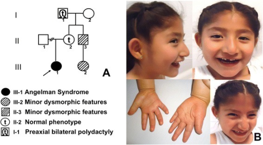 Angelman Syndrome (AS