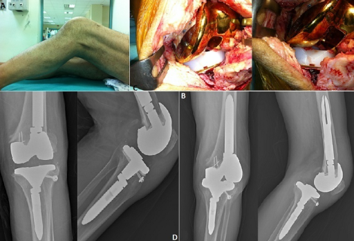 Dislocation of a revision total knee arthroplasty