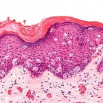 High magnification micrograph of extramammary Paget's disease