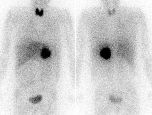 Pheochromocytoma Scan