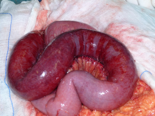 Photograph showing the small bowel and its associated mesentery with diffuse edema and ischemic lesions