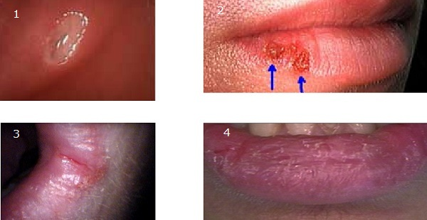 Photographic Comparison of a Canker Sore, Herpes, Angular Cheilitis and Chapped Lips