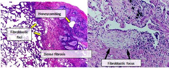 Photomicrograph of the histopathological appearances of usual interstitial pneumonia