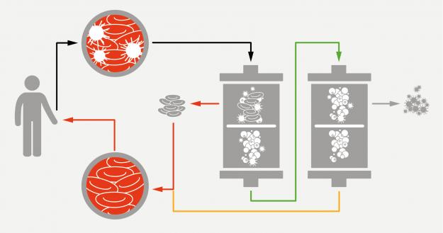 Schema of Plasmapharesis