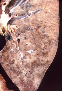 Pneumocystis jiroveci infection