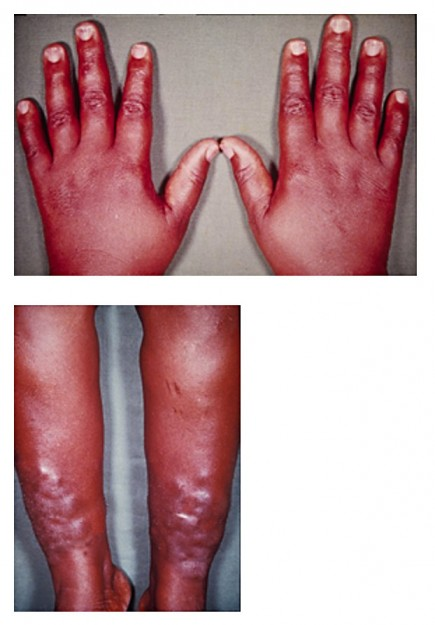 Pretibial Myxedema on Hands and Legs