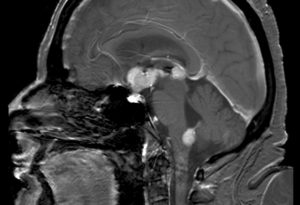 primary central nervous system b-cell non-hodgkin lymphoma