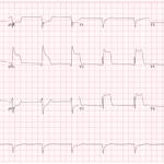 Prinzmetal-angina