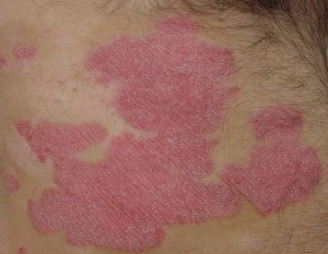 Psoriasis plaque . In higher resolution the silvery whitish remnants of the fallen skin layer are visible