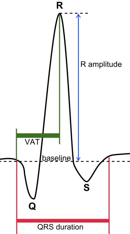 QRS_complex