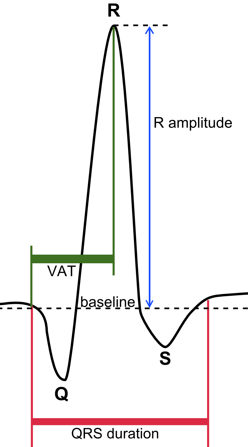 How To Interpret An Ecg In Seven Steps Online Medical Library Circuit Diagram Step 5 The Qrs Complex