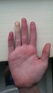 Raynaud's Phenomenon 2