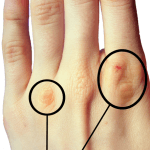 Russell's Sign on the knuckles of the index and ring fingers.