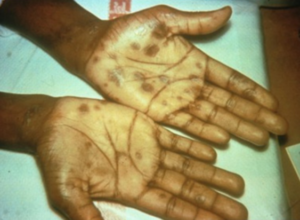 secondary syphilis – palmar rash