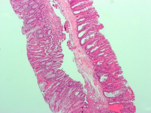 Sessile serrated adenoma