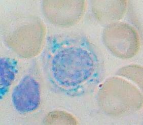 Sideroblast