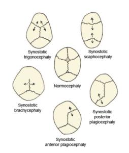 Single-suture-synostosis