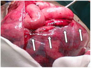 Small bowel injury in peritoneal encapsulation following penetrating abdominal trauma