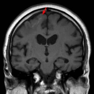 Some day old cortical infarction right up front with low hemorrhage