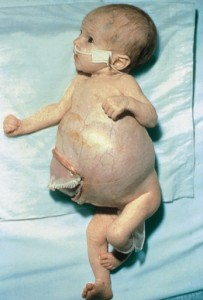 Stage-IV-S-Neuroblastoma-Baby