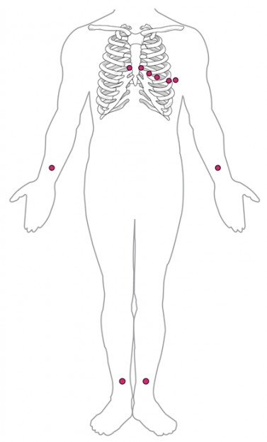 Standard Placement of ECG Leads