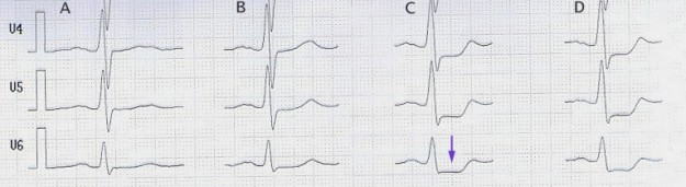 Stress ECG ST Depression