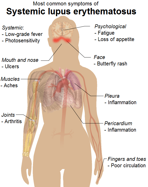 Common signs and symptoms of systemic lupus erythematosus.