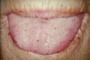Tongue telangiectases in hereditary hemorrhagic telangiectasia