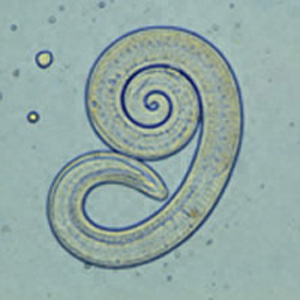 Trichinella spiralis larvae in pressed bear meat, partially digested with pepsin.