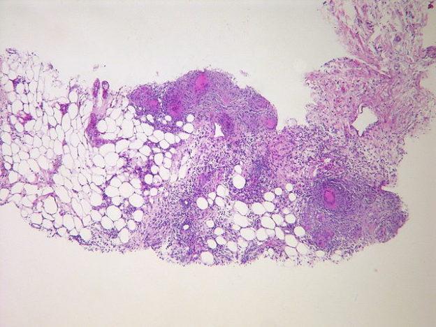 Tuberculous peritonitis