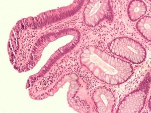 Tubular adenoma