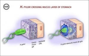 Ulcer causing bacterium