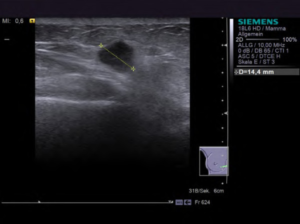 Ultrasonography breast cancer