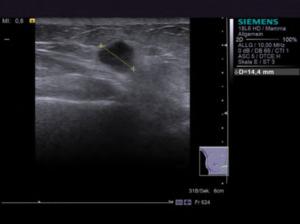 Ultrasonography breast cancer