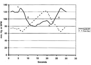 Systolic blood pressure and pulse rate changes during Valsalva maneuver